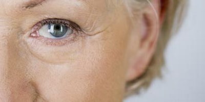 botox for crows feet eye wrinkles Halifax